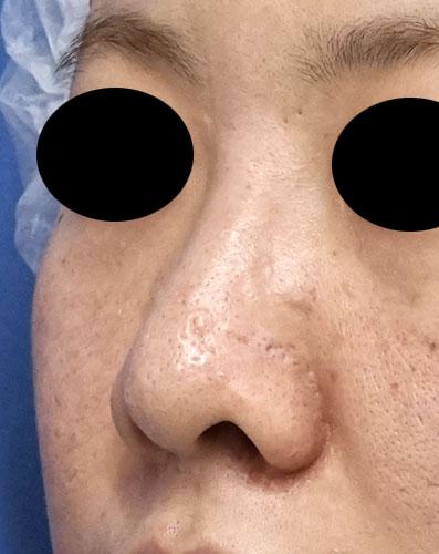 鼻尖縮小、鼻孔縁延長 6ヶ月後 左斜めのBefore写真
