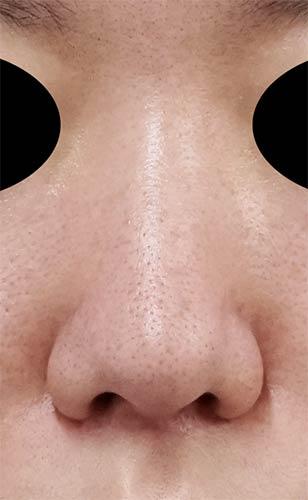 鼻尖縮小、軟骨移植 1ヶ月後 正面のBefore写真