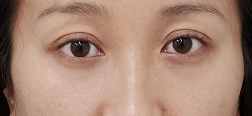 目の下の脂肪取り、コンデンス脂肪注入(目の下) 半年後のAfterの写真