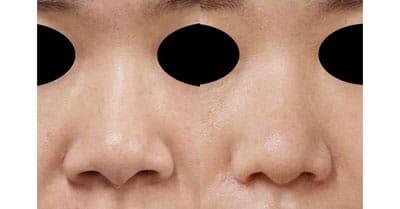 小鼻縮小(内側+外側)、鼻尖縮小、軟骨移植 3ヶ月後