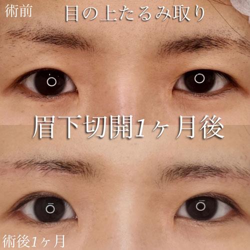 眉下切開1か月後 メイクなしでの術前術後の比較