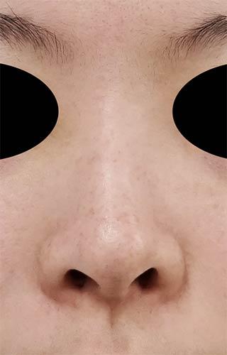 鼻尖縮小、鼻孔縁延長 1ヶ月後 正面のBefore写真