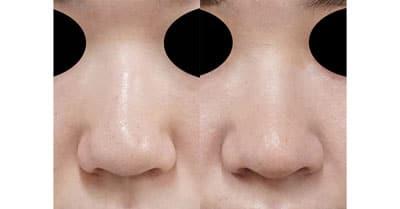 オステオポール除去、鼻尖縮小、軟骨移植、ストラット 3か月後