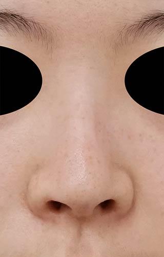 鼻尖縮小、鼻孔縁延長 1ヶ月後 正面のAfterの写真