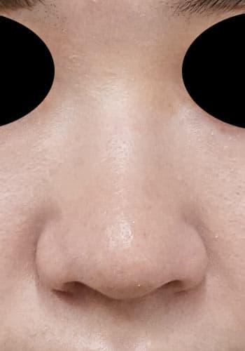 オステオポール除去、鼻尖縮小、軟骨移植、ストラット 3か月後 正面のAfterの写真