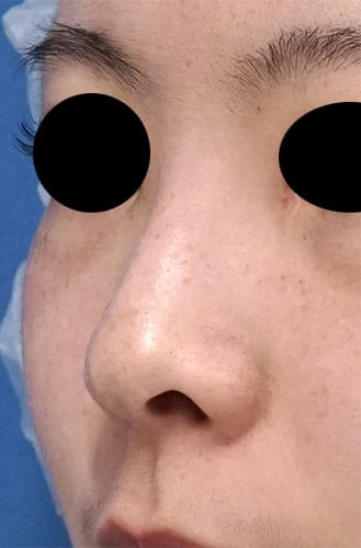 鼻尖縮小、鼻孔縁延長 1ヶ月後 左斜めのBefore写真
