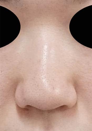 オステオポール除去、鼻尖縮小、軟骨移植、ストラット 3か月後 正面のBefore写真