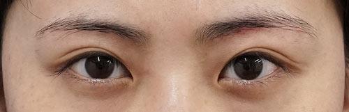 眉下切開 4ヶ月後のAfterの写真