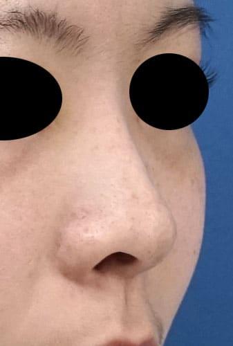 鼻尖縮小、鼻孔縁延長 1ヶ月後 右斜めのBefore写真